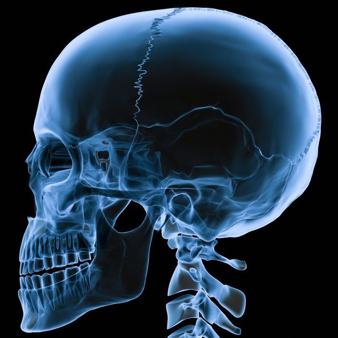 skull-fracture-x-ray - Jim Algie